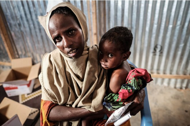 Famine is a symptom of protracted war