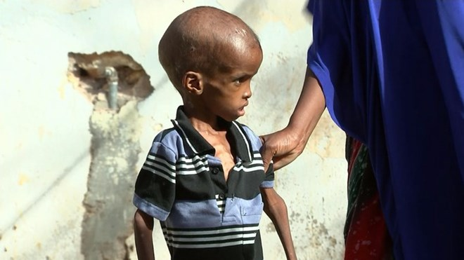 Malnutrition, particularly in children and the elderly, is clear to see. Credit: ITV News