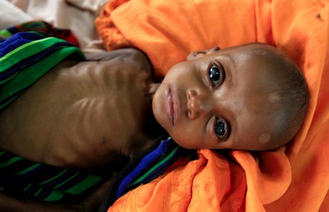 FILE PHOTO: An unidentified severely malnourished Somali refugee child rests inside a ward at the Medecins Sans Frontieres (MSF) hospital at the Dagahale refugee camp in Dadaab, near the Kenya-Somalia border, in Garissa County, Kenya July 28, 2011. REUTERS/Thomas Mukoya/File Photo